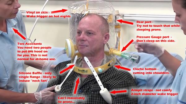 StarMed CAStar CPAP Hood